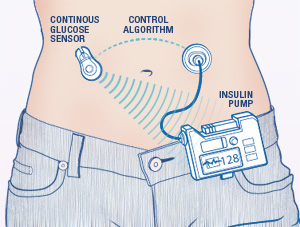 artificial-pancreas-diagram_mayoclinic