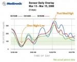 continuous glucose monitor graph