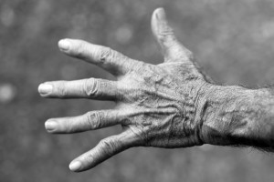 osteoarthritis of the hand in type 1 diabetes patients