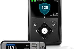 670G Minimed system