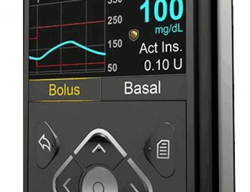 Insulet OmniPod Insulin Pump Pros & Cons | Integrated