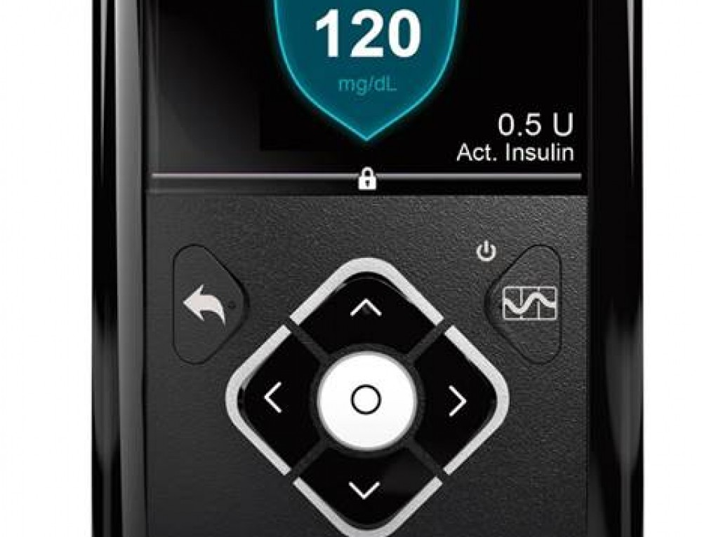 Medtronic MiniMed 670G with Guardian Insulin Pump Pros and Cons