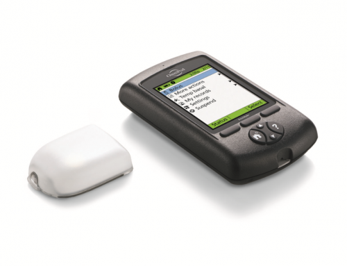 2018 Review: Insulet OmniPod Insulin Pump Pros and Cons