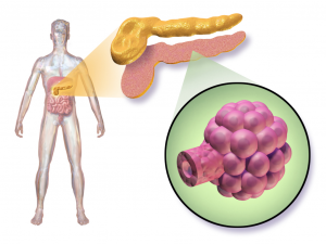 Islet Cell Transplant