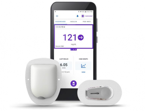 OmniPod Gears Up to (Almost) Close the Loop